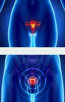 Cirurgia de l'aparell genital